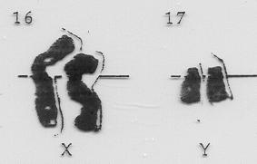 XXYY Chromosomes